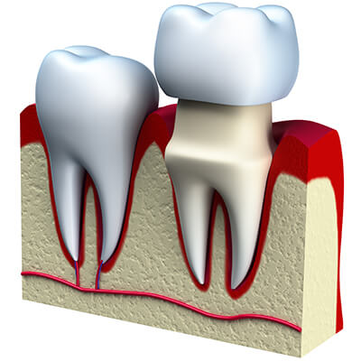 CEREC Dental Crowns Offers One-Visit Restorations for El Dorado, AR Area Patients