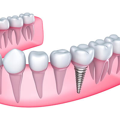 Implant Dentist in El Dorado AR Area