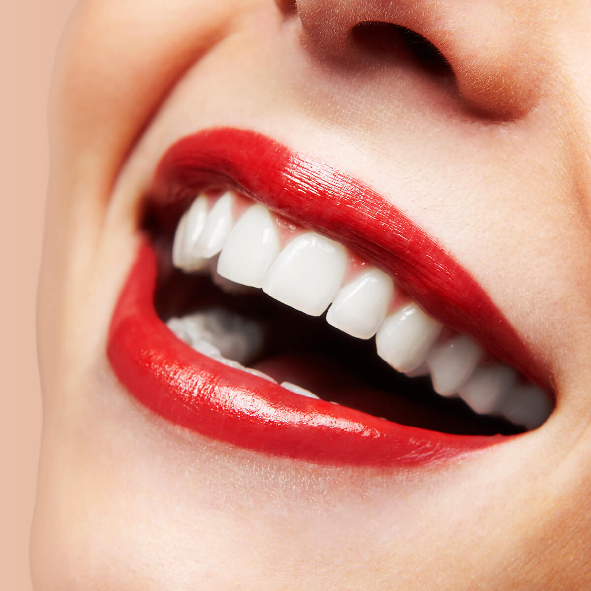 Fix Crooked Teeth with Porcelain Veneers in El Dorado Area