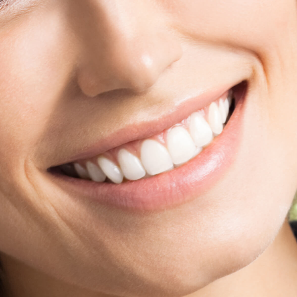 What Does Getting Veneers with a dentist in El Dorado AR Area Involve?